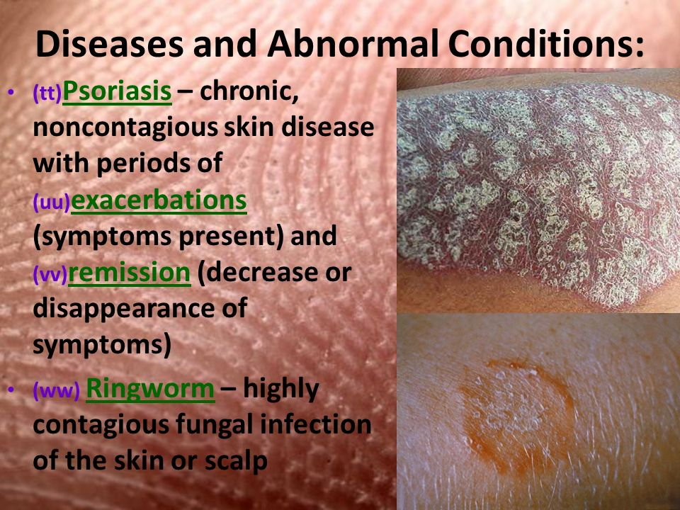 Diseases and Abnormal Conditions: (tt) Psoriasis – chronic, noncontagious skin disease with periods of (uu) exacerbations (symptoms present) and (vv) remission (decrease or disappearance of symptoms) (ww) Ringworm – highly contagious fungal infection of the skin or scalp