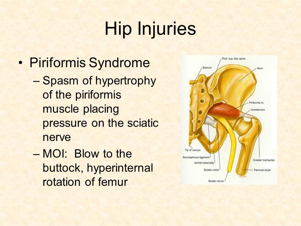 Sciatic nerve piriformis anatomy