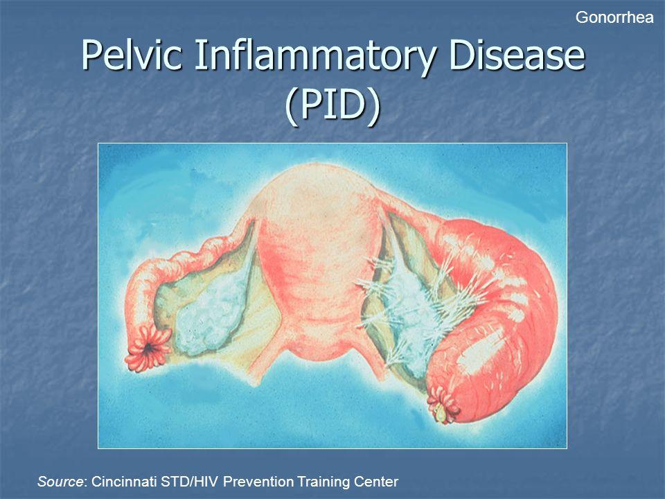 Pelvic Inflammatory Disease (PID) Source: Cincinnati STD/HIV Prevention Training Center Gonorrhea
