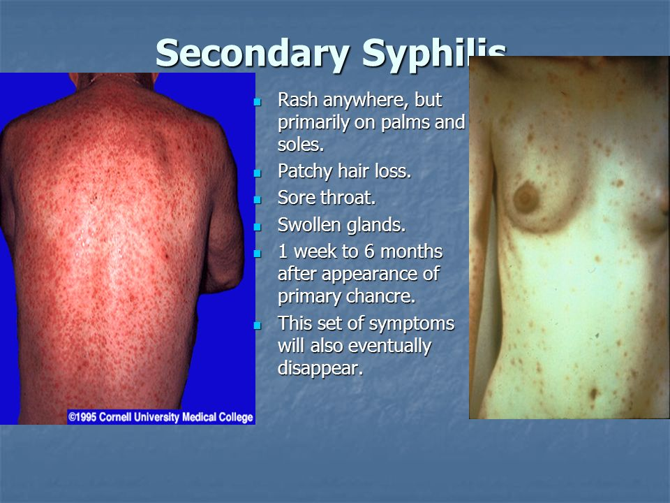 Secondary Syphilis Rash anywhere, but primarily on palms and soles. Rash anywhere, but primarily on palms and soles. Patchy hair loss. Patchy hair los