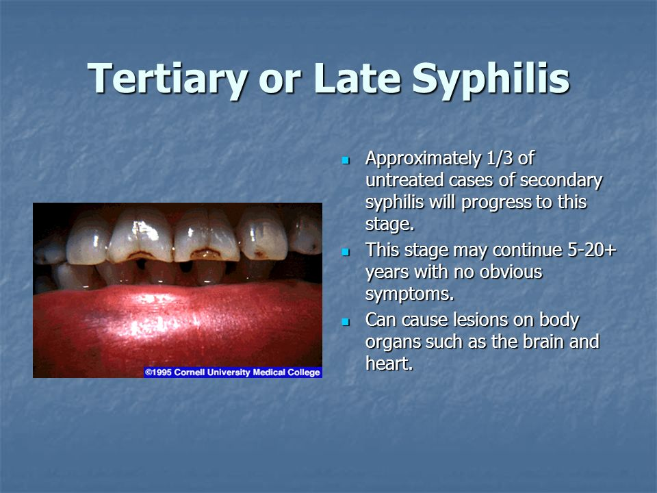 Tertiary or Late Syphilis Approximately 1/3 of untreated cases of secondary syphilis will progress to this stage. Approximately 1/3 of untreated cases