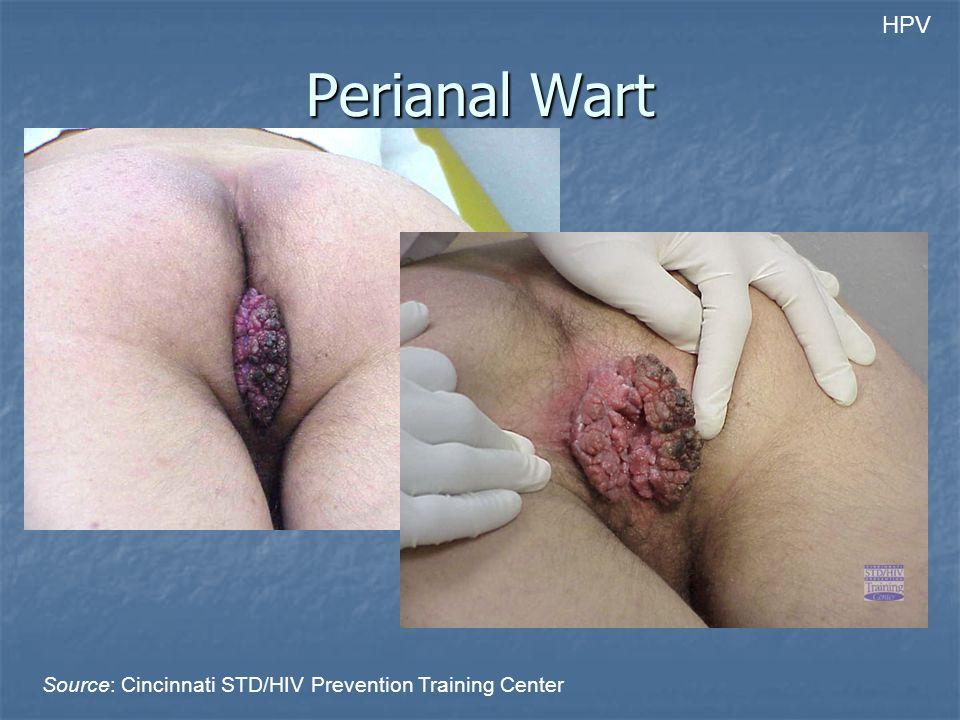 Perianal Wart Source: Cincinnati STD/HIV Prevention Training Center HPV