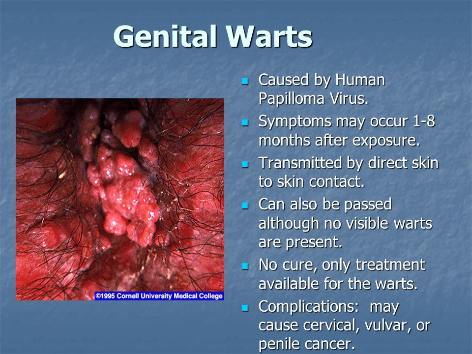 Genital Warts Caused by Human Papilloma Virus. Caused by Human Papilloma Virus. Symptoms may occur 1-8 months after exposure. Symptoms may occur 1-8 m