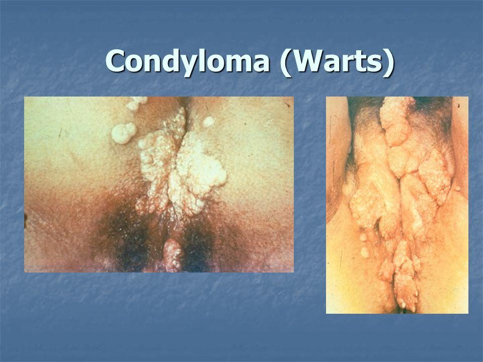 Condyloma (Warts)