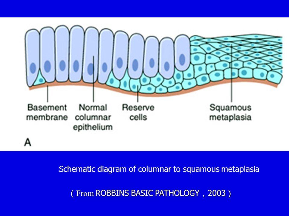 Schematic diagram of columnar to squamous metaplasia ( From ROBBINS BASIC PATHOLOGY , 2003 )