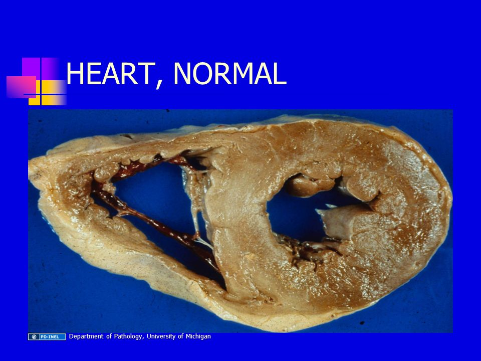 HEART, NORMAL Department of Pathology, University of Michigan Department of Pathology, University of Michigan