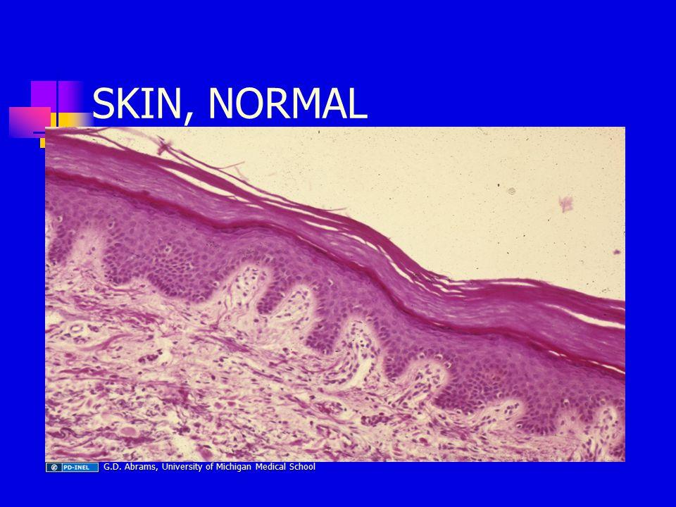 SKIN, NORMAL G.D. Abrams, University of Michigan Medical School G.D.