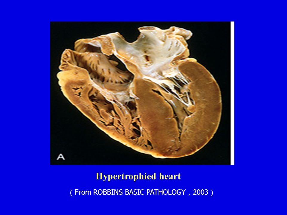 Hypertrophied heart ( From ROBBINS BASIC PATHOLOGY , 2003 )