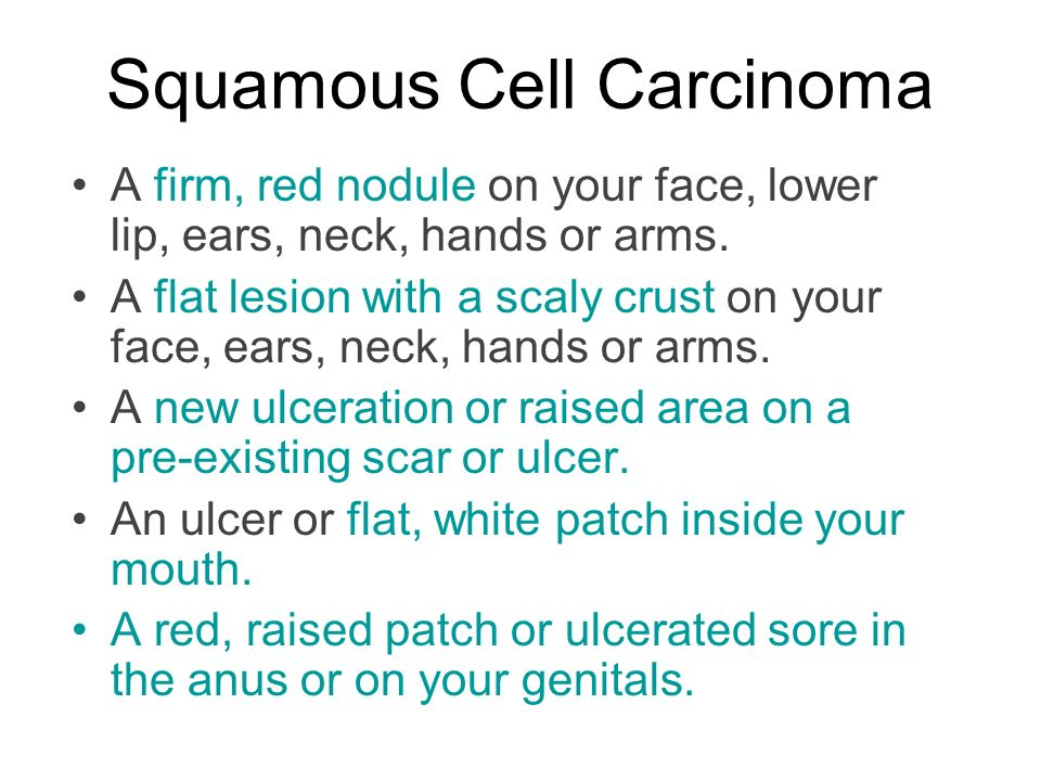 Squamous Cell Carcinoma A firm, red nodule on your face, lower lip, ears, neck, hands or arms.