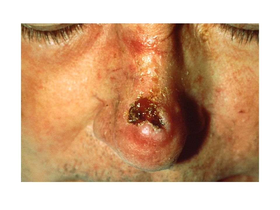 Melanoma A highly malignant type of skin cancer that arises in melanocytes, the cells that produce pigment.
