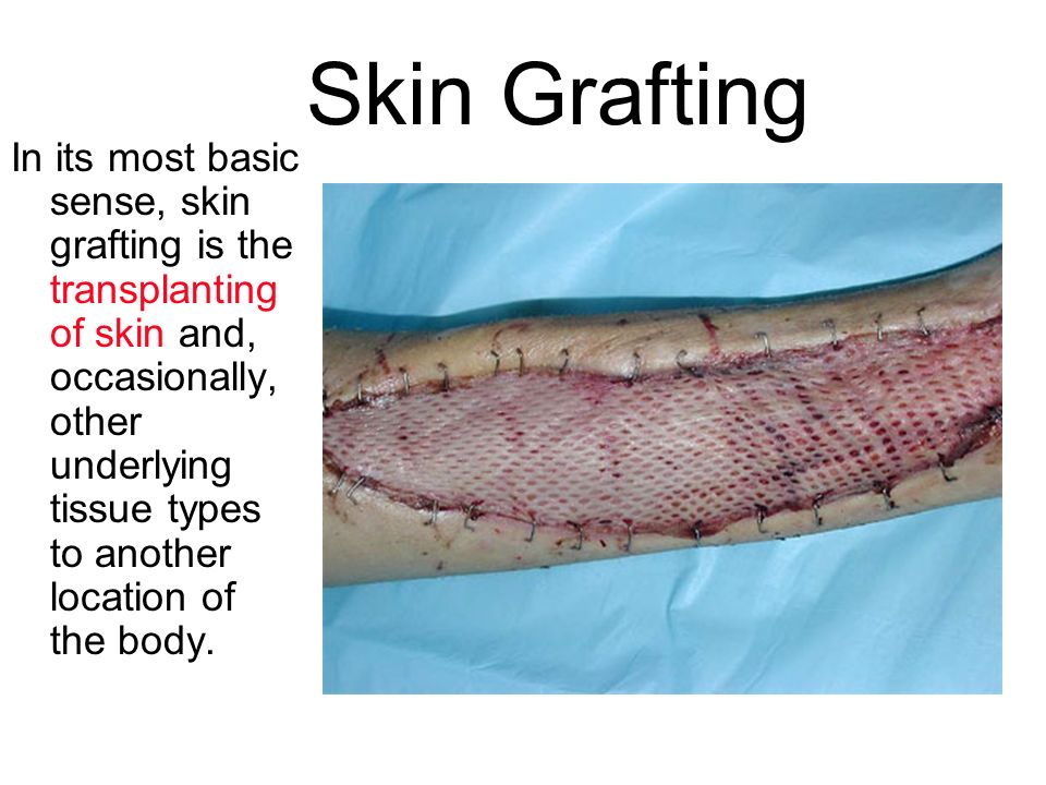 Skin Grafting In its most basic sense, skin grafting is the transplanting of skin and, occasionally, other underlying tissue types to another location of the body.