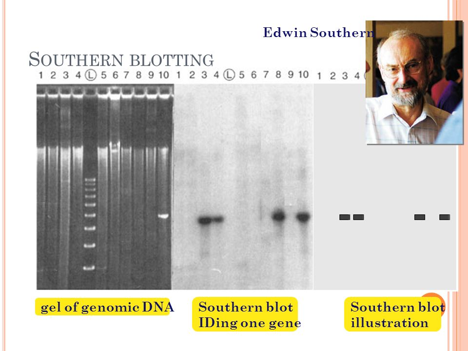 S OUTHERN BLOTTING restriction digestgel electrophoresis blot DNA off of gel onto filter paper wash filter with labeled probe expose filter paper to X-ray film