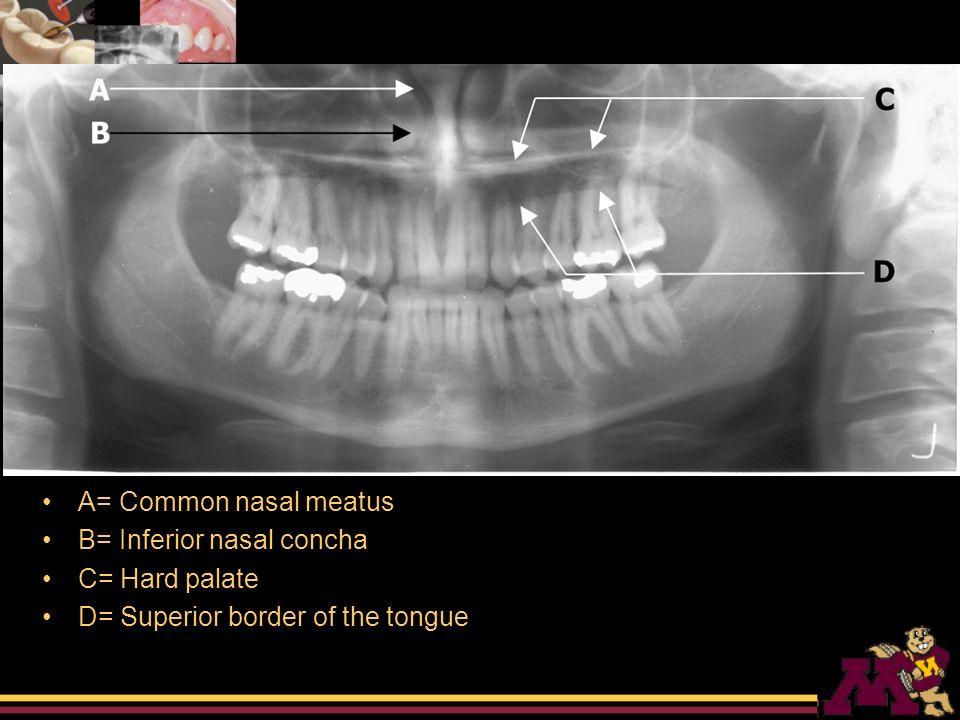 Zygomatic Process Of Maxilla X Ray rim B  Zygomatic process