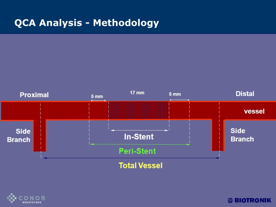 C Proximal D 5 mm 17 mm 5 mm In-Stent Peri-Stent Total Vessel Side Branch Distal vessel QCA Analysis - Methodology