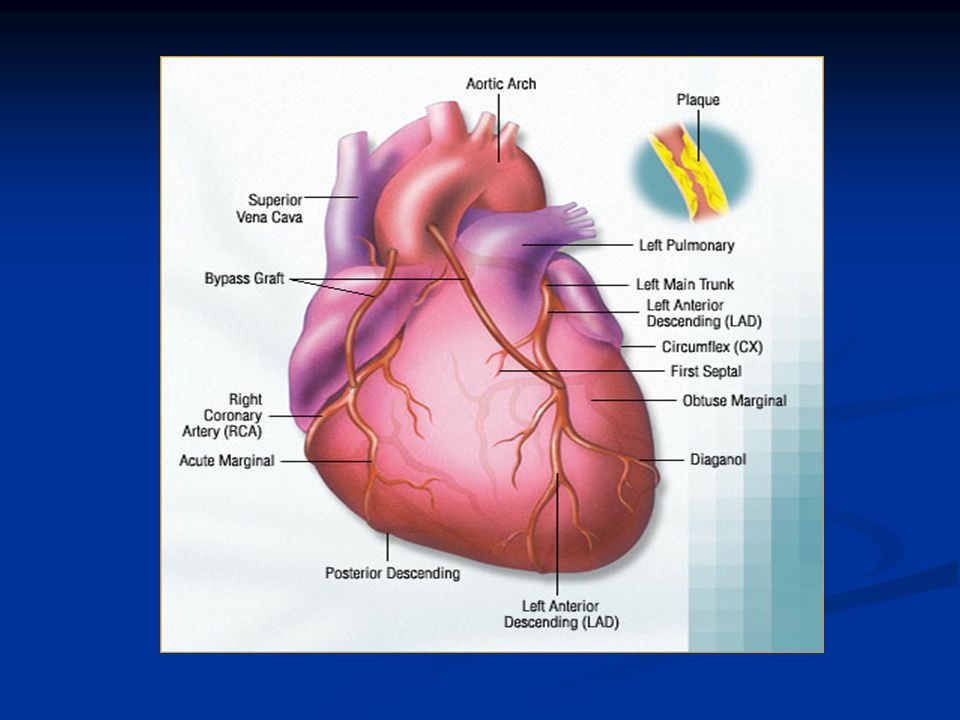 cad coronary artery disease coronary heart Coronary artery disease (cad) is caused by atherosclerosis of the coronary arteries that leads to a restriction of blood flow to the • coronary heart disease.