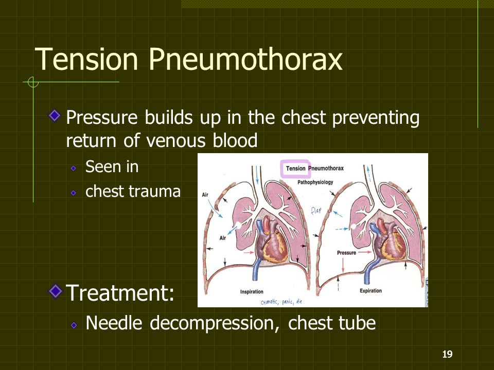 19 Tension Pneumothorax Pressure builds up in the chest preventing return of venous blood Seen in chest trauma Treatment: Needle decompression, chest tube 19