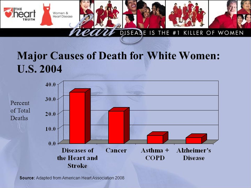 Major Causes of Death for White Women: U.S.