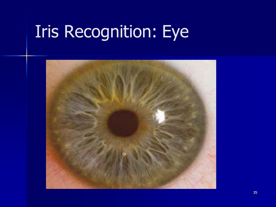 35 Iris Recognition: Eye