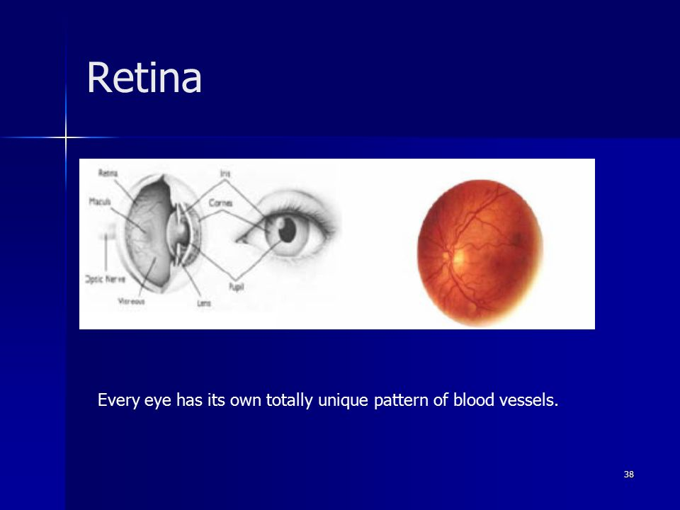 38 Retina Every eye has its own totally unique pattern of blood vessels.