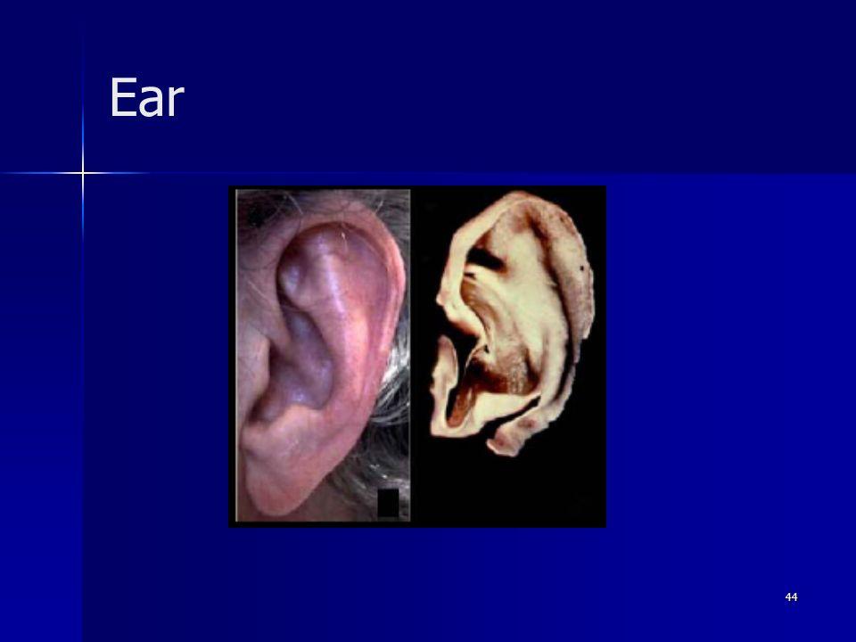 44 Ear