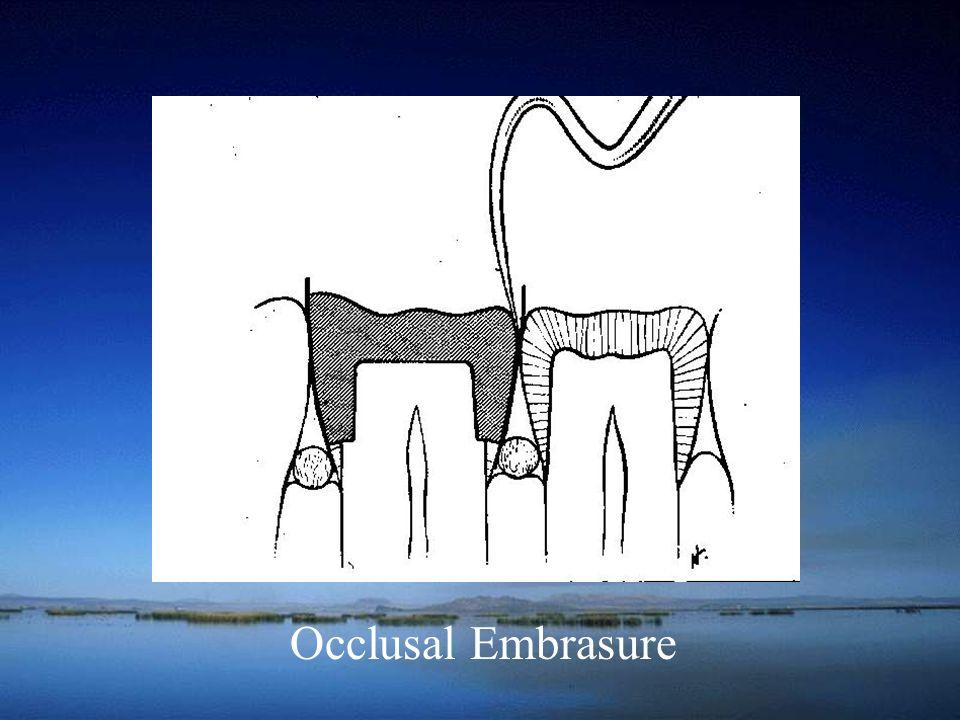 Occlusal Embrasure