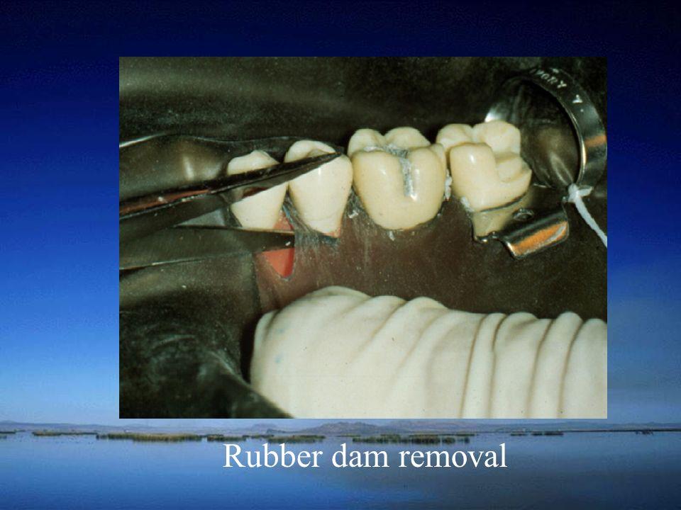 Rubber dam removal