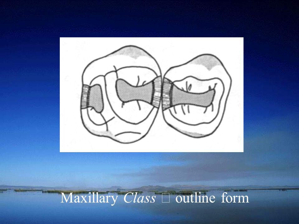 Maxillary Class Ⅱ outline form