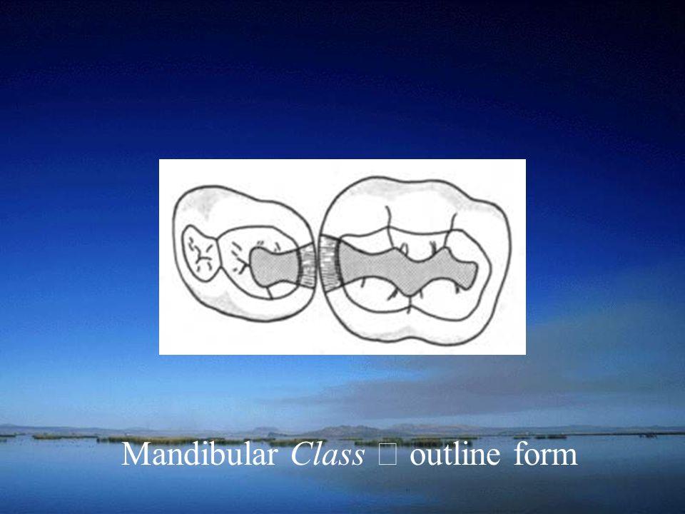 Mandibular Class Ⅱ outline form