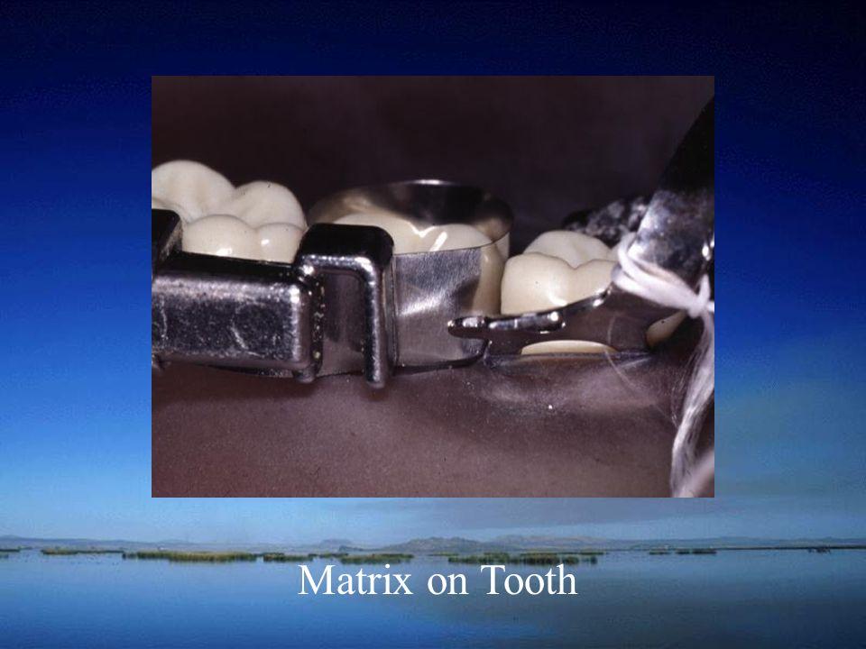 Matrix on Tooth
