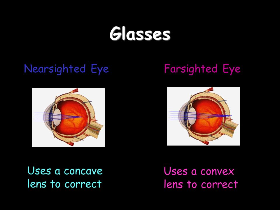 Glasses Nearsighted EyeFarsighted Eye Uses a concave lens to correct Uses a convex lens to correct