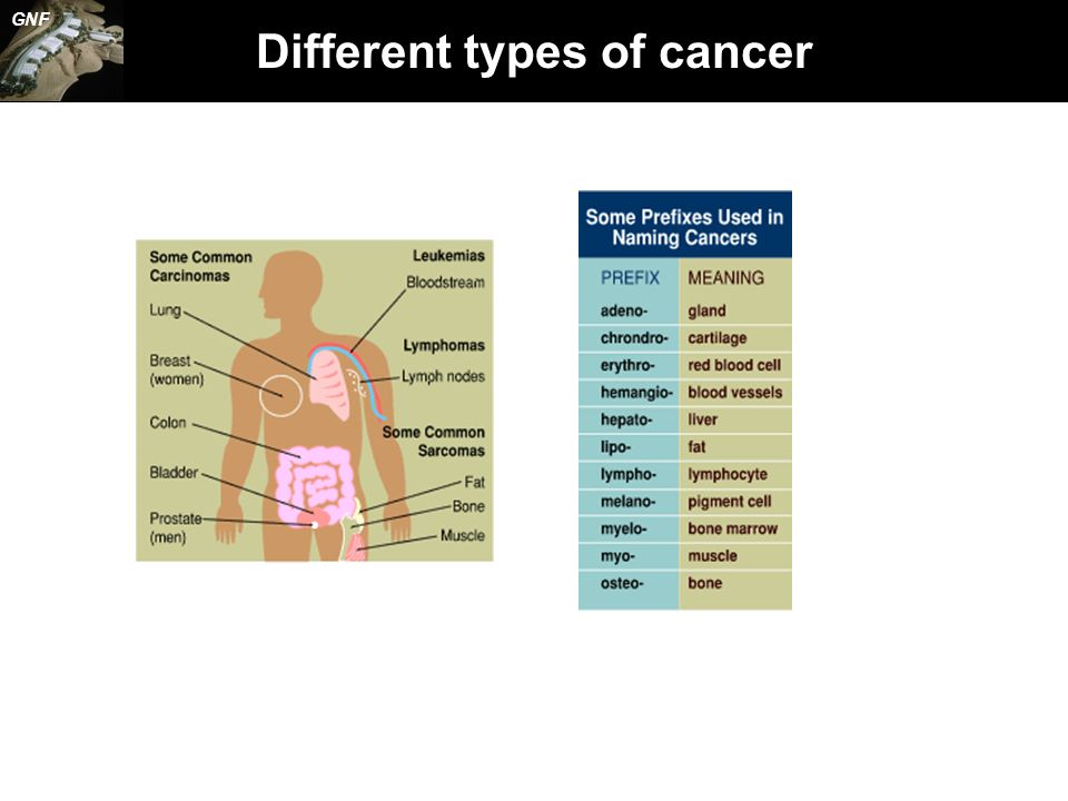 Different types of cancer GNF