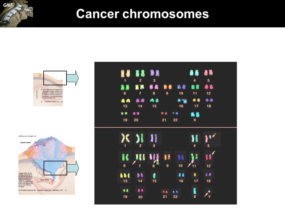Cancer chromosomes GNF