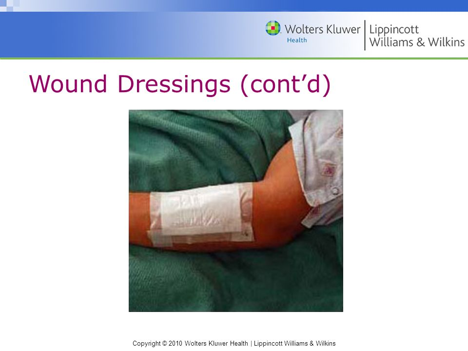 Copyright © 2010 Wolters Kluwer Health | Lippincott Williams & Wilkins Wound Dressings (cont'd)