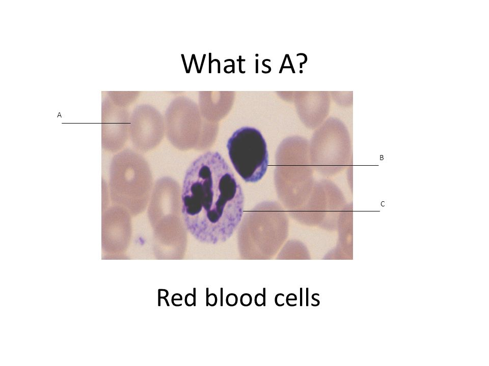 What is A Red blood cells A B C