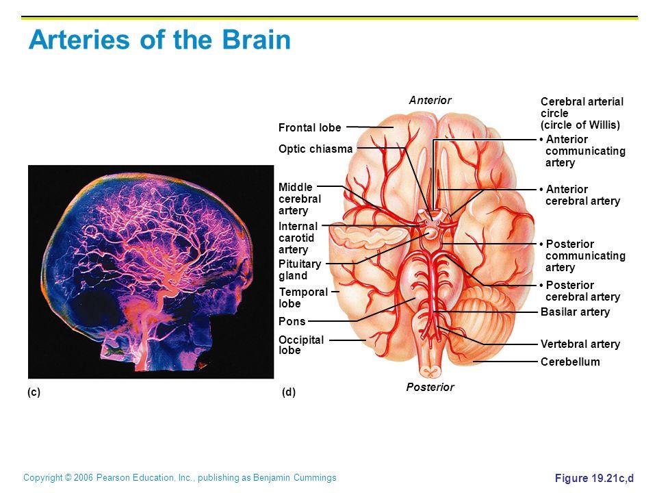 Copyright © 2006 Pearson Education, Inc., publishing as Benjamin Cummings Figure 19.21c,d (d)(c) Frontal lobe Optic chiasma Middle cerebral artery Int