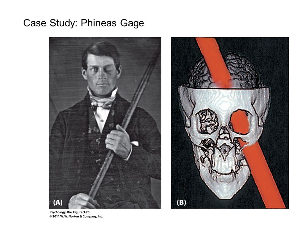 the story of phineas gage essay The story of phineas gage tdixon may 11, 2017 biological psychology , criminology , general interest leave a comment important note: phineas gage is an interesting way to learn about the relationship between the frontal lobe and our behaviour.