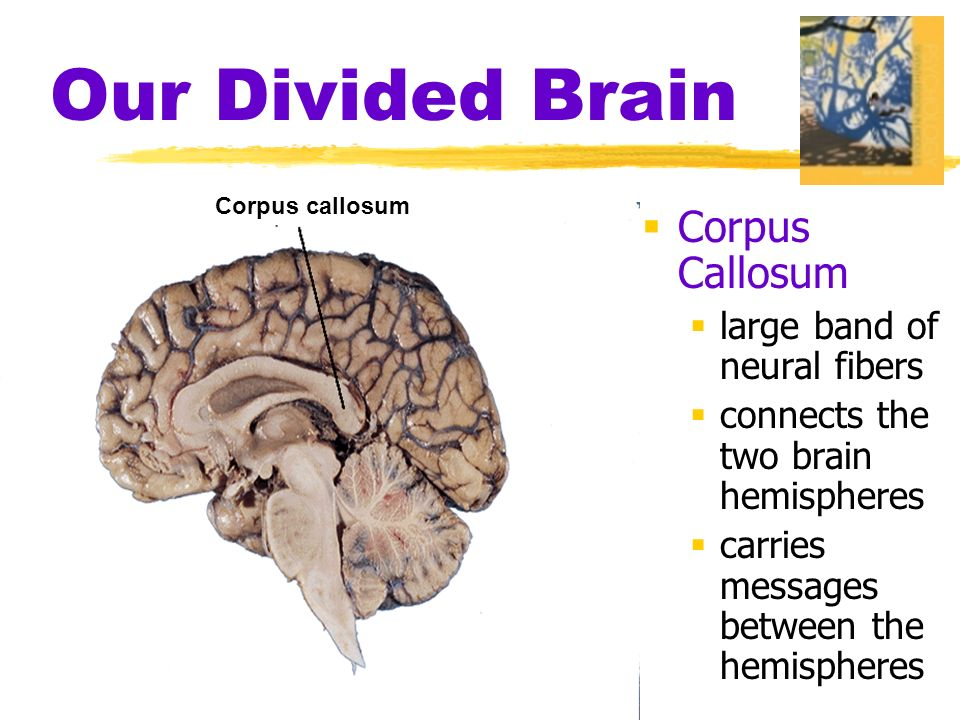Our Divided Brain  Corpus Callosum  large band of neural fibers  connects the two brain hemispheres  carries messages between the hemispheres Corpus callosum