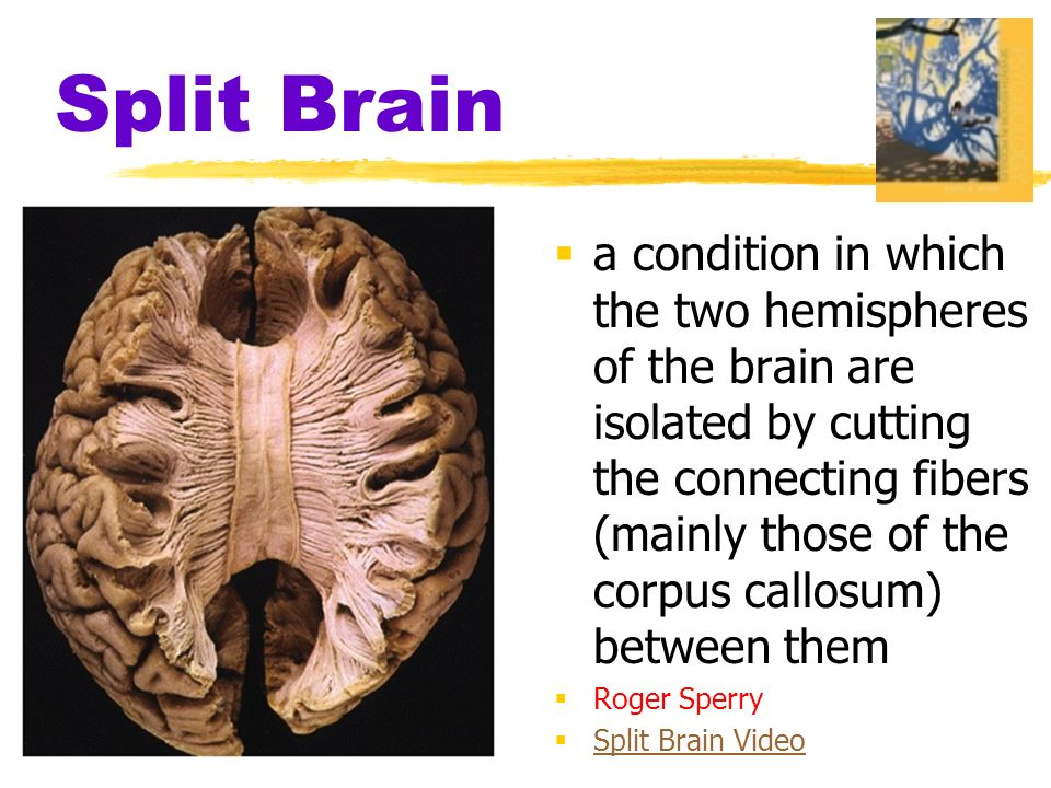 Split Brain  a condition in which the two hemispheres of the brain are isolated by cutting the connecting fibers (mainly those of the corpus callosum) between them  Roger Sperry  Split Brain Video Split Brain Video