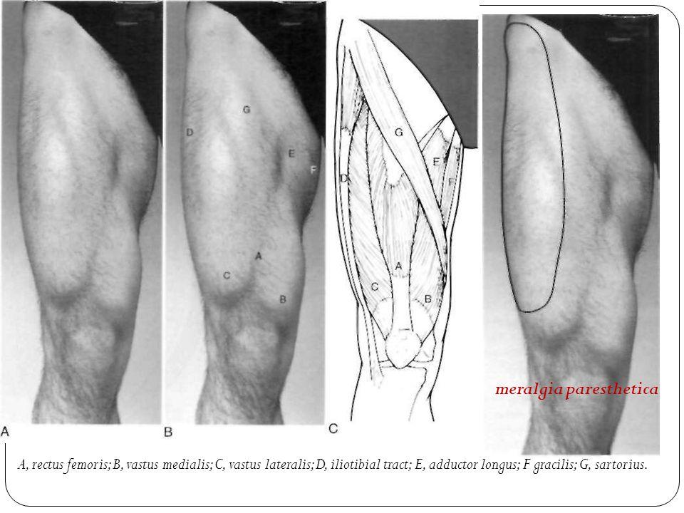 S.Sattari,MD Pelvis, Hip, and Thigh examination. pelvic ring ...