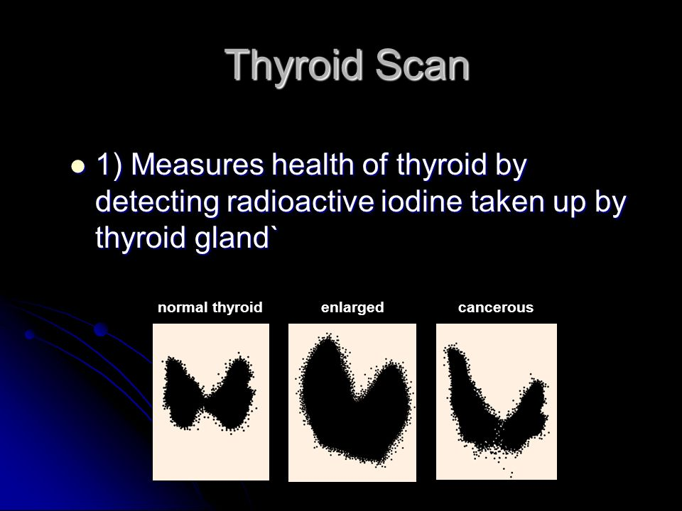 Thyroid Scan Thyroid Scan 1) Measures health of thyroid by detecting radioactive iodine taken up by thyroid gland` 1) Measures health of thyroid by detecting radioactive iodine taken up by thyroid gland` normal thyroidenlargedcancerous