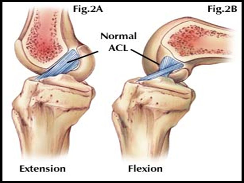 Sport Injuries And Biomechanics Acl Rupture Anatomy Intra Capsular