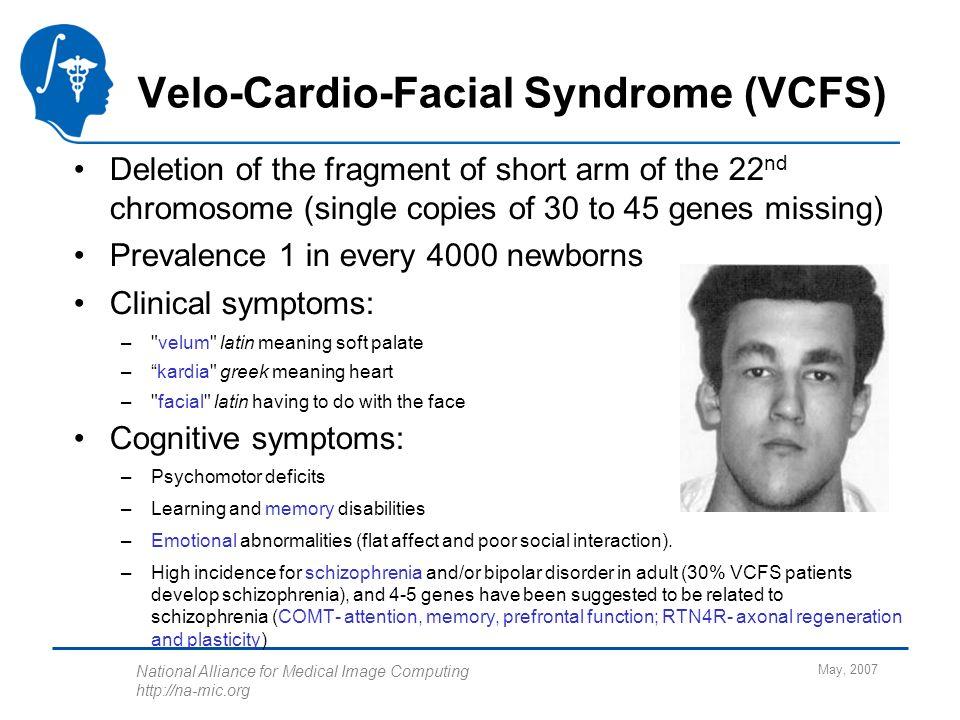 Velo cardio facial syndrom