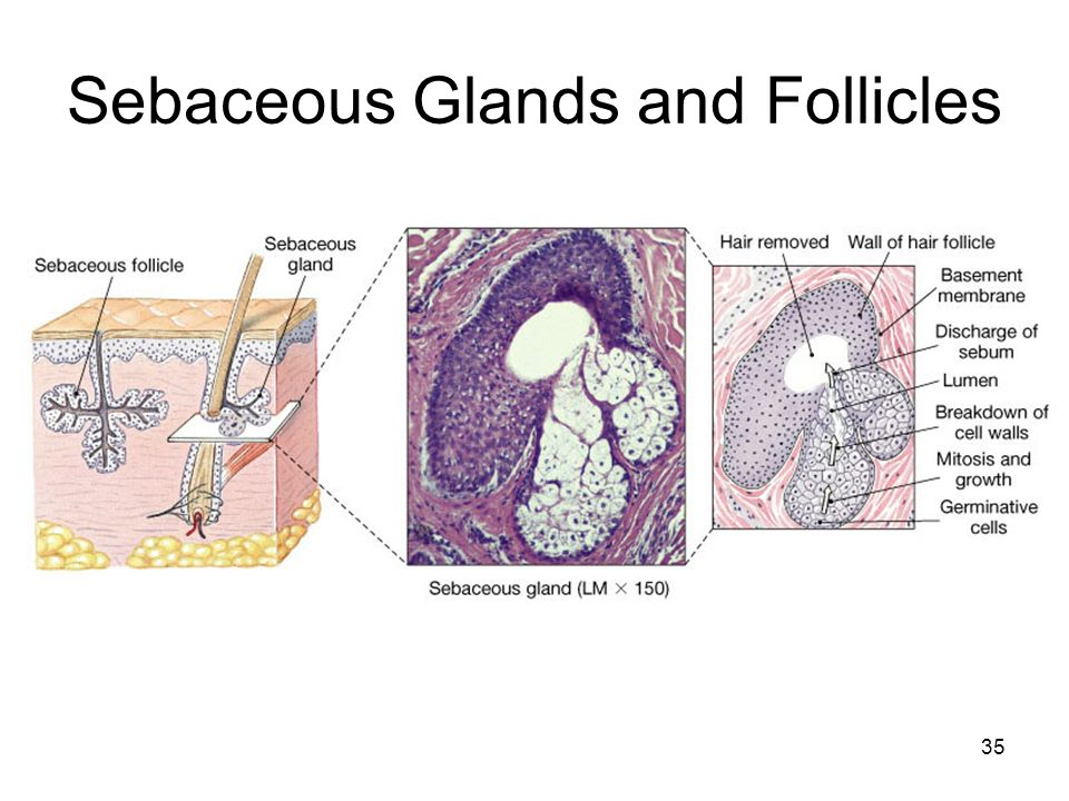 Sebaceous Glands and Follicles 35