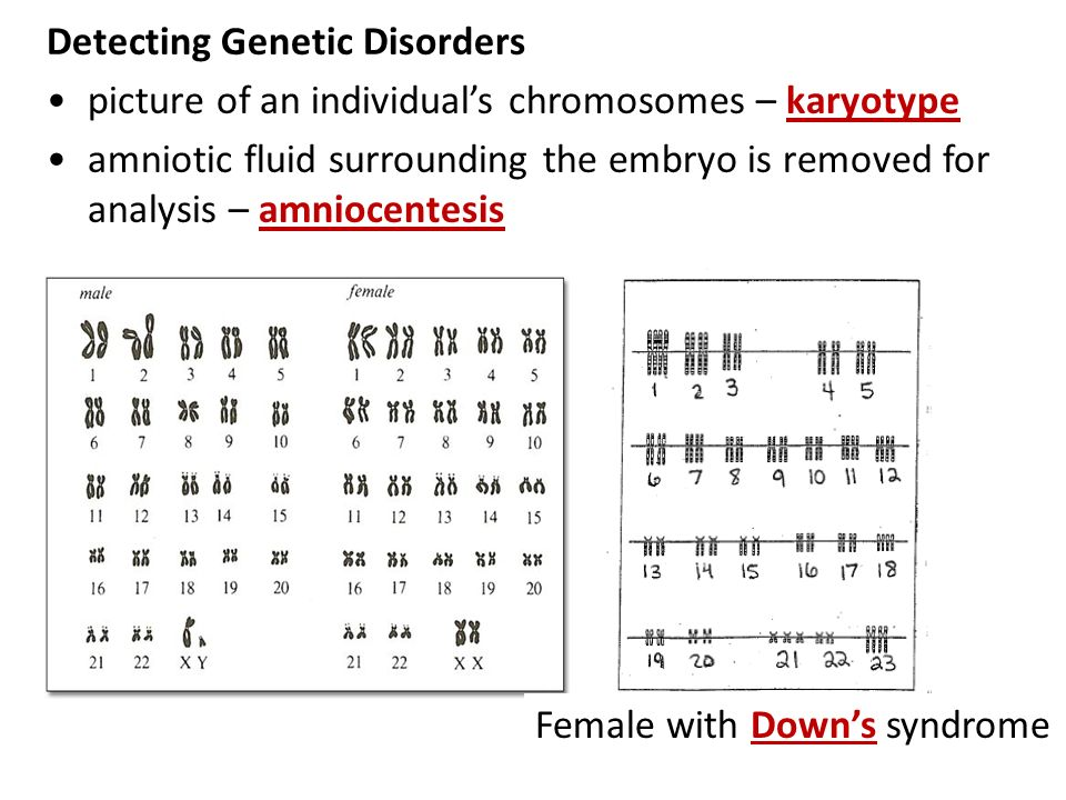HW 66 Work on the INDIVIDUAL portion of the Genetic Disorder – Genetic Disorders Worksheet