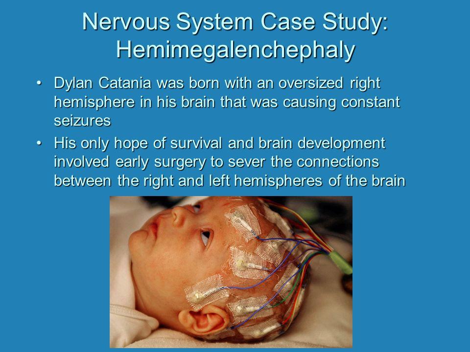 Autonomic Nervous System  Case Study  Pinterest