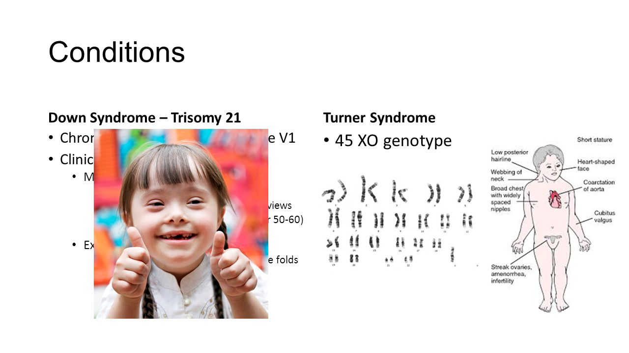 down syndrome trisomy 21 Down syndrome, also known as trisomy 21, is the most common autosomal chromosome aberration, occurring in approximately 1:700 live births the risk of a trisomy 21 pregnancy rises with increasing maternal age clinically, trisomy 21 manifests as a syndrome involving a characteristic appearance, organ malformations, and mental disability.