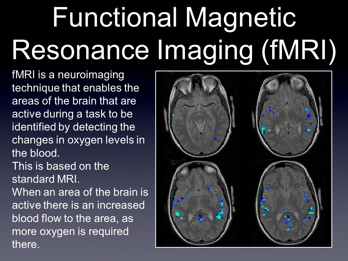 Functional Magnetic Resonance Imaging (fMRI) fMRI is a neuroimaging technique that enables the areas of the brain that are active during a task to be identified by detecting the changes in oxygen levels in the blood.