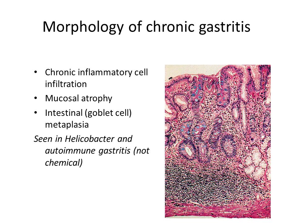 diseases of the stomach prof: hussien gadalla. gastric disorders, Skeleton