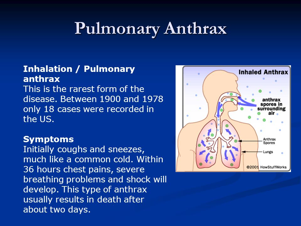 Pulmonary Anthrax Inhalation / Pulmonary anthrax This is the rarest form of the disease.