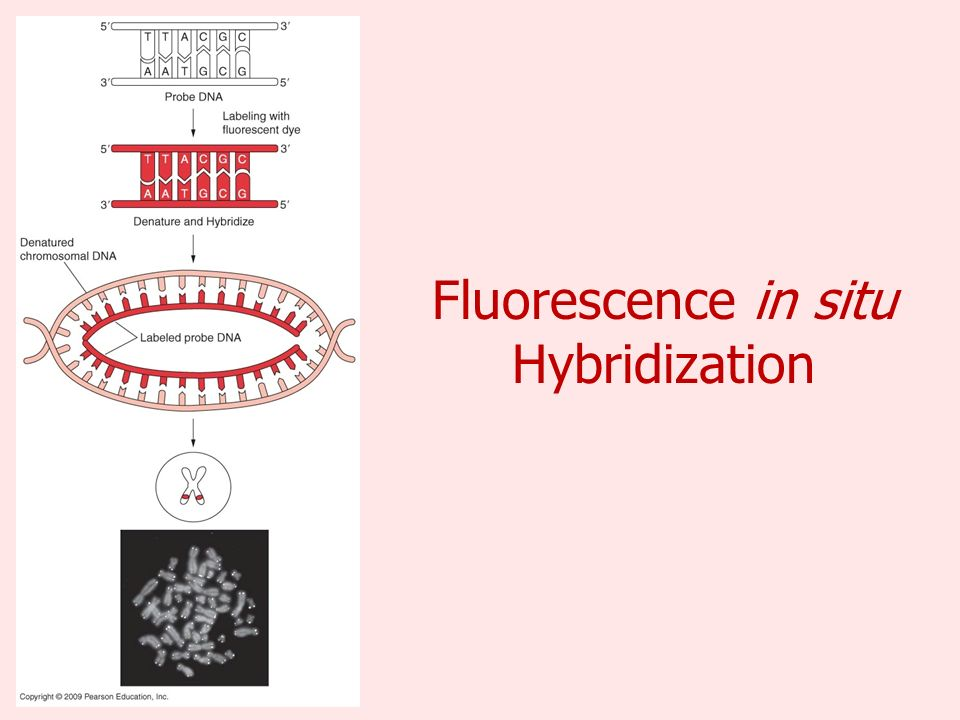 Fluorescence in situ Hybridization